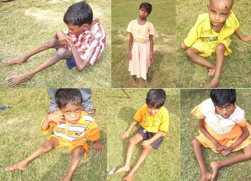 7 cases of polio detected in Kendrapada district